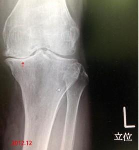 膝変化2012